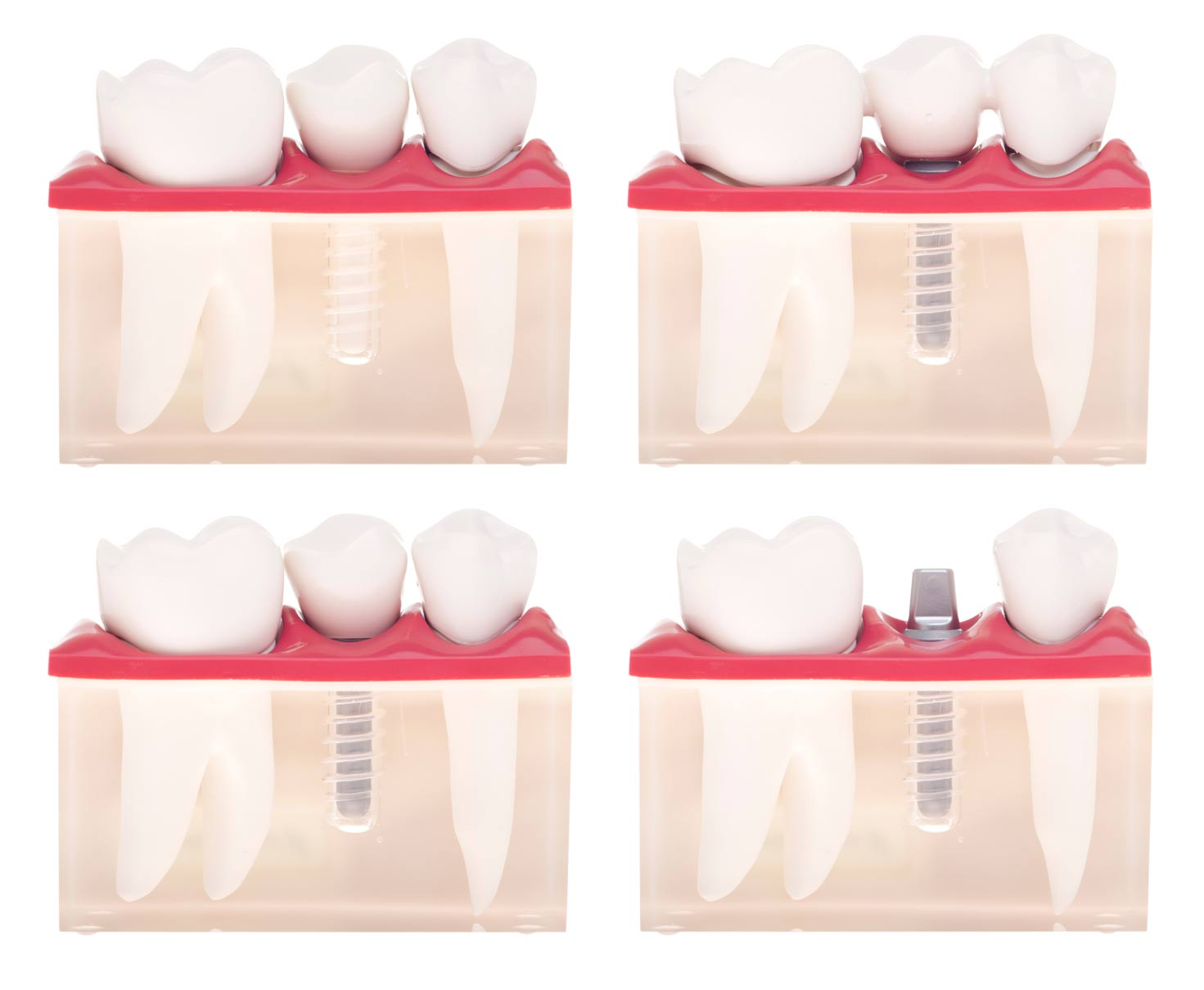 Things You Didn't Know About Dental Implants