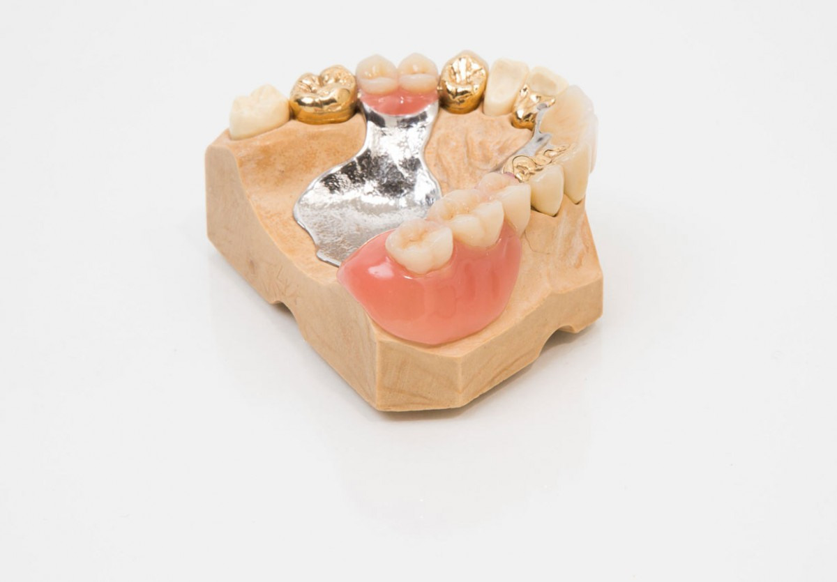 Dental Implants cypress